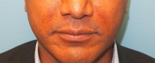After Injection of Nasolabial Folds/Smile  Lines with Dermal Filler