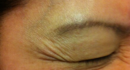 Before Botox Injection of Crow's Feet