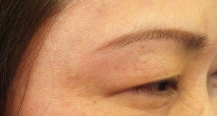 After Botox Injection of Crow's Feet