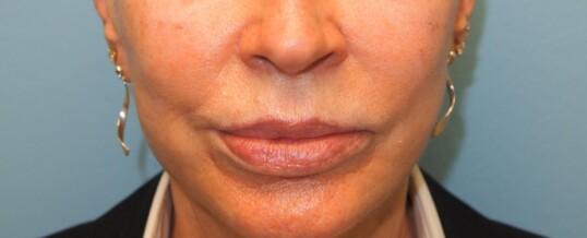 After Dermal Filler to Enhance Cheeks