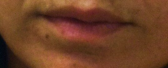 Before Dermal Filler to Enhance Lips