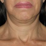 Non-invasive Ultherapy