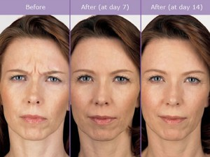 Botox treatment for Frown Lines before and after photo