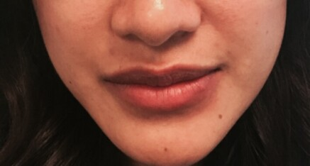 After Dermal Filler for Lip Enhancement
