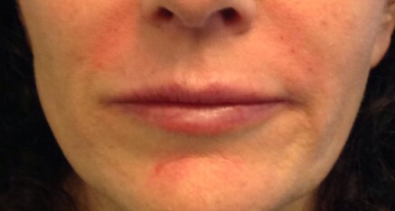 After Dermal Filler for Smile Lines & Upper Lip Enhancement
