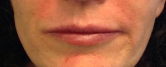 After Dermal Filler for Smile Lines & Upper Lip Enhancement