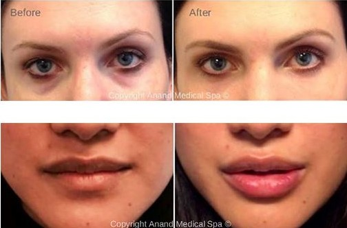 BEAUTY AND HEALTH. Dermal Fillers and Botox - Before and After Treatment Photos: female