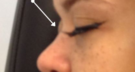 Before Dermal Filler for Nasal Bridge