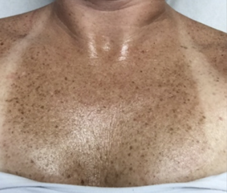 Sun damage chest treatment