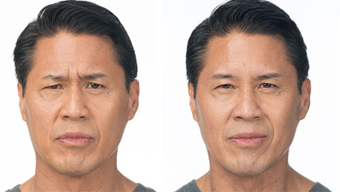 BOTOX FOR WRINKLES - Before Treatment Photo:Female (frontal view)