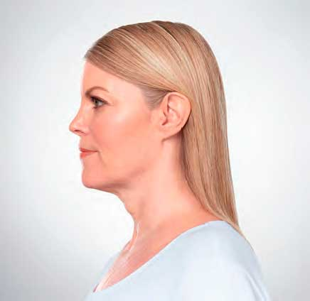 Eliminate Your Double Chin with Kybella in NYC - MIDTREATMENT