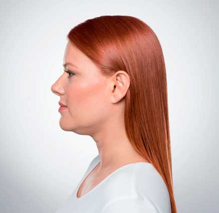 Eliminate Your Double Chin with Kybella in NYC - Before2
