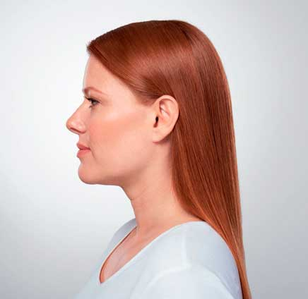 Eliminate Your Double Chin with Kybella in NYC - MIDTREATMENT2