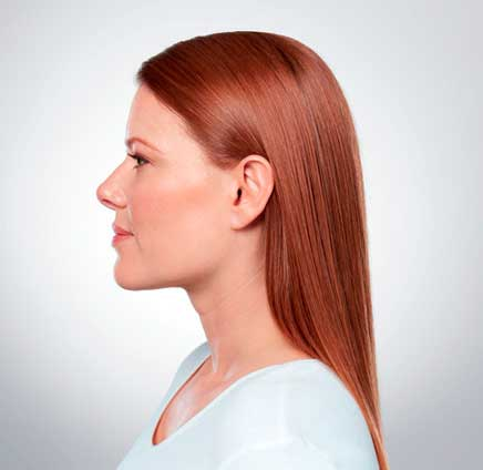 Eliminate Your Double Chin with Kybella in NYC - After2
