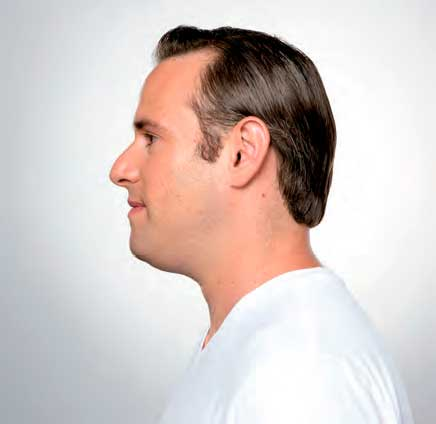 Eliminate Your Double Chin with Kybella in NYC - Before3