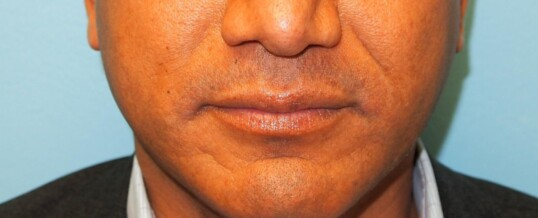 Before Injection of Nasolabial Folds/Smile Lines with Dermal Filler