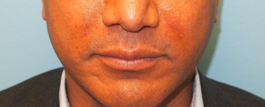 After Injection of Nasolabial Folds/Smile  Lines with Dermal Filler
