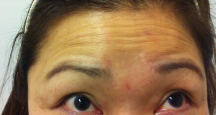 Before Botox Injection of Forehead Lines
