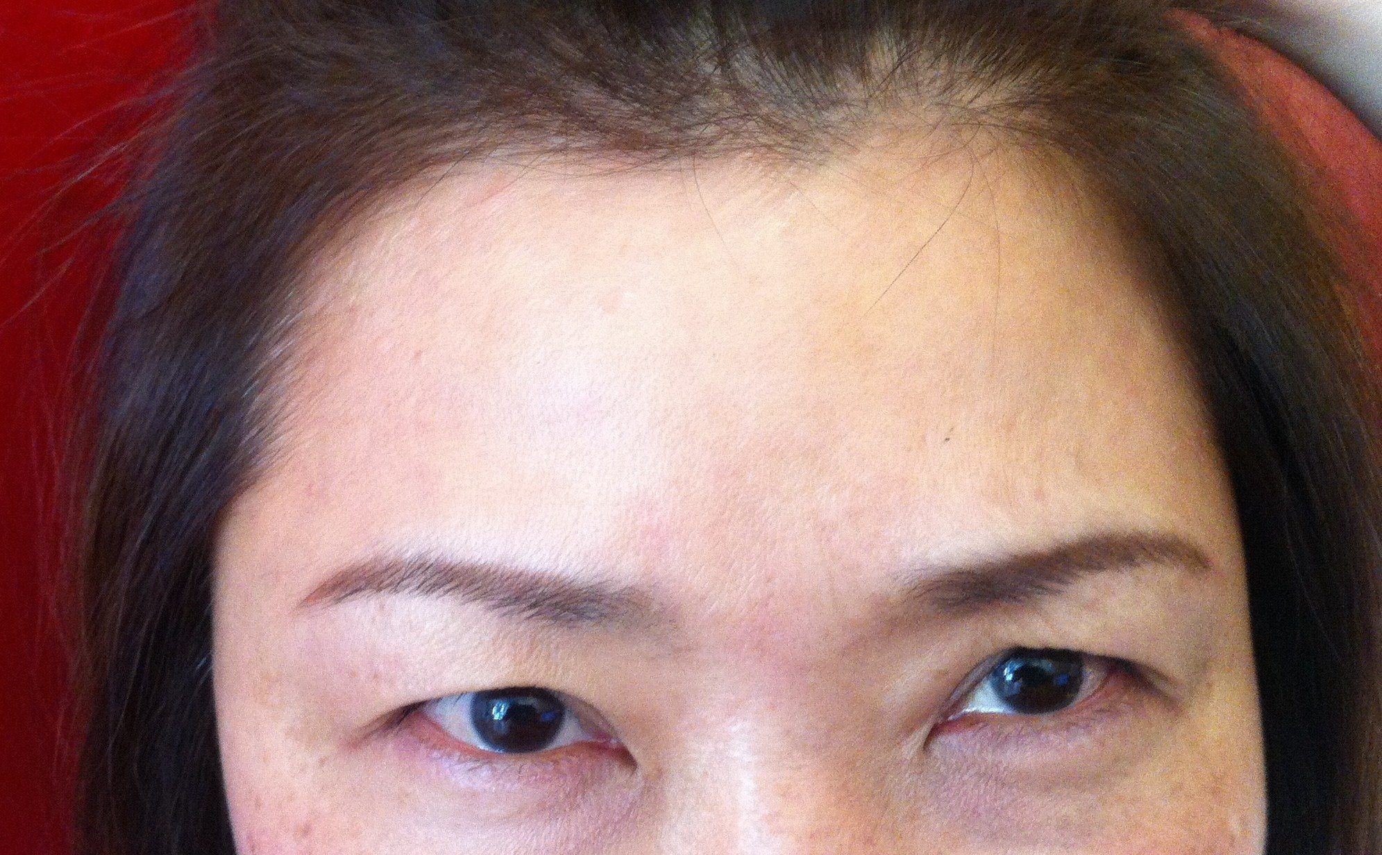 After Botox Injection Of Forehead Lines