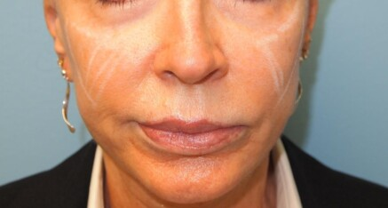 Before Dermal Filler to Enhance Cheeks