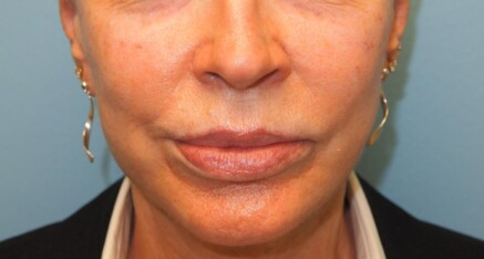 After Dermal Filler to Enhance Cheeks