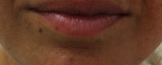 After Dermal Filler to Enhance Lips