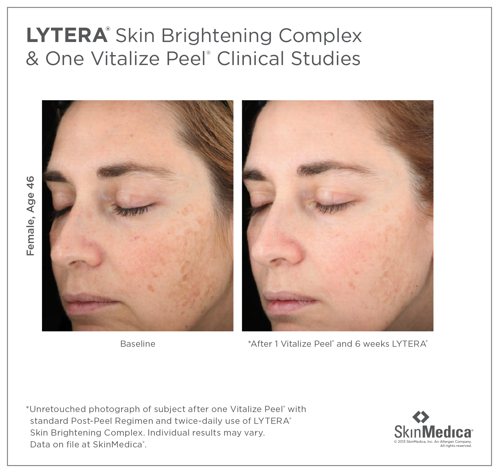 Book Your SkinMedica Peel Series Today