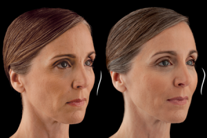 Before and After Photos: JUVÉDERM VOLUMA™ XC - female (right side, oblique view)