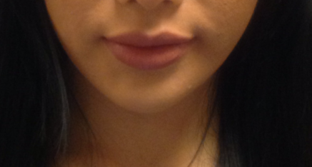 After Dermal Filler for Chin Enhancement