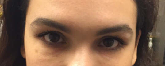 After Dermal Filler for Undereye Hollow & Dark Circles