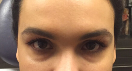 Before Dermal Filler for Undereye Hollow & Dark Circles