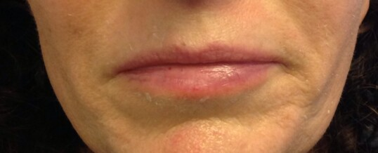 Before Dermal Filler for Smile Lines & Upper Lip Enhancement