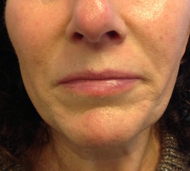 Before Dermal Filler For Smile Lines Amp Upper Lip Enhancement
