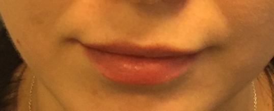 Before Dermal Filler for Lip Enhancement