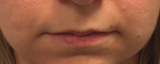 Before Dermal Filler for Lip Enhancement