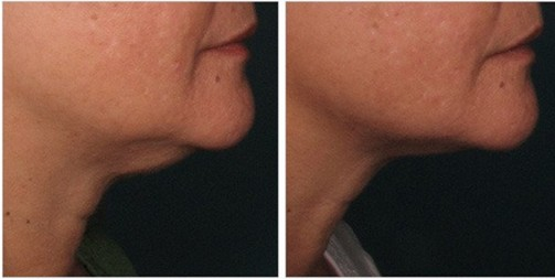 BEAUTY AND HEALTH. Before and After Treatment Photos: female (right side view)