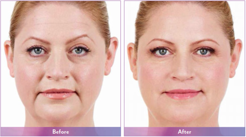 Customized 20-Minute Non-Surgical Facelift Just for You!