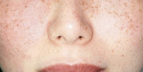 Sun damage/hyperpigmentation face