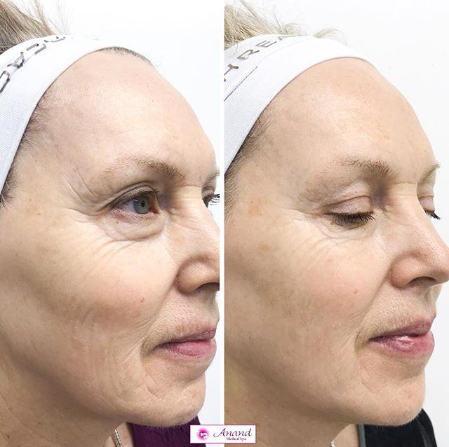 Skin Rejuvenation NYC | Anti-Aging Treatments New York