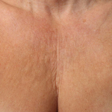 Eliminate Your Double Chin with Kybella in NYC - Before