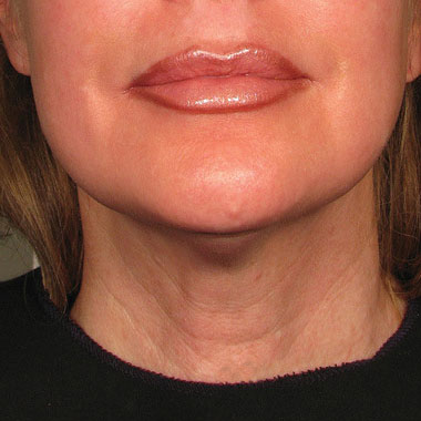 Eliminate Your Double Chin with Kybella in NYC - After